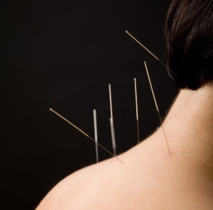 Acupuncture treatment for different ailments and diseases: Acupuncture clinic in Dublin 6
