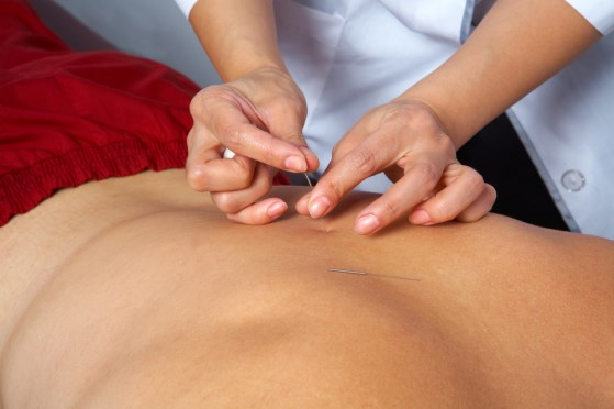 Acupuncture, health : Acupuncture Clinic Dublin 6 Athlone Ireland